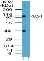 PACS1 Antibody (PA5-23291) in Western Blot
