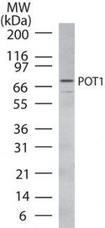 POT1 Antibody (PA1-41147) in Western Blot
