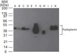 Podoplanin Antibody (MA5-16270)