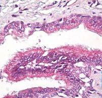 RAP2A Antibody (PA5-23298) in Immunohistochemistry (Paraffin)