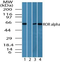 RORA Antibody (PA5-23268) in Western Blot