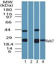 RAB7 Antibody (PA5-23138) in Western Blot