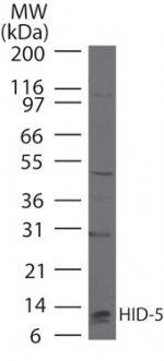 S100A7 Antibody (PA5-23142) in Western Blot