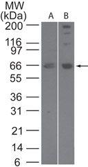 SENP2 Antibody (PA1-41260) in Western Blot