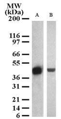 SETD7 Antibody (PA1-41119) in Western Blot