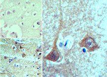 TBKBP1 Antibody (PA5-23223) in Immunohistochemistry (Paraffin)