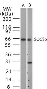 SOCS5 Antibody (PA1-41253)