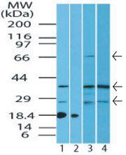 ST2 Antibody (PA5-23316) in Western Blot