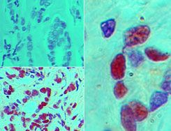 STING Antibody (PA5-23381) in Immunohistochemistry (Paraffin)