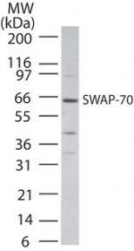 SWAP70 Antibody (PA1-41490) in Western Blot