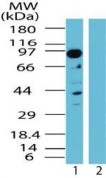 TAB3 Antibody (PA1-41489) in Western Blot
