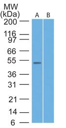 TRAF7 Antibody (PA1-41285) in Western Blot
