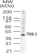 TRIB3 Antibody (PA1-41018)