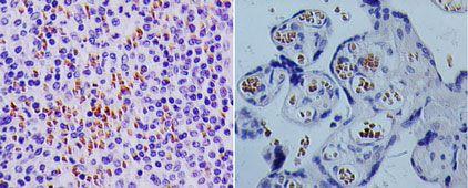 TSLP Antibody (PA5-23190)