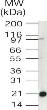 UBE2V1 Antibody (PA1-41381) in Western Blot