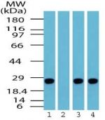 PGP9.5 Antibody (PA1-41465) in Western Blot