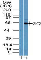 ZIC2 Antibody (PA5-23446) in Western Blot