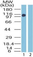 ZMYM2 Antibody (PA1-41457) in Western Blot