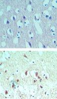 eIF4A2 Antibody (PA5-23260) in Immunohistochemistry (Paraffin)