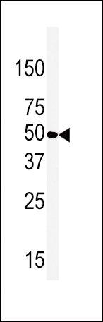 beta-2 Adrenergic Receptor Antibody (PA5-14116)