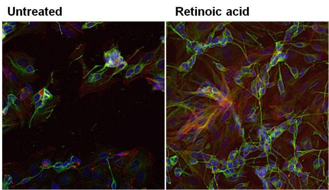 beta-3 Tubulin Antibody (MA1-118) in Immunofluorescence