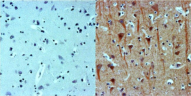 beta-3 Tubulin Antibody (MA1-118X) in Immunohistochemistry