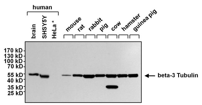 beta-3 Tubulin Antibody (MA1-118X) in Western Blot