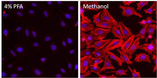 beta Actin Antibody (MA5-15739-D550) in Immunofluorescence