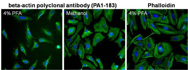 beta Actin Antibody (PA1-183)