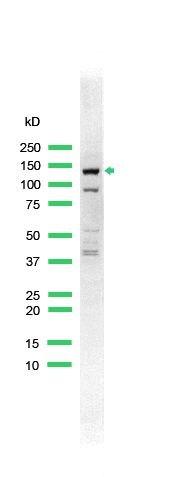 ErbB4 Antibody (PA5-32347) in Western Blot