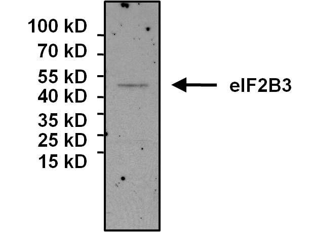 eIF2b gamma Antibody (MA1-078) in Immunoprecipitation