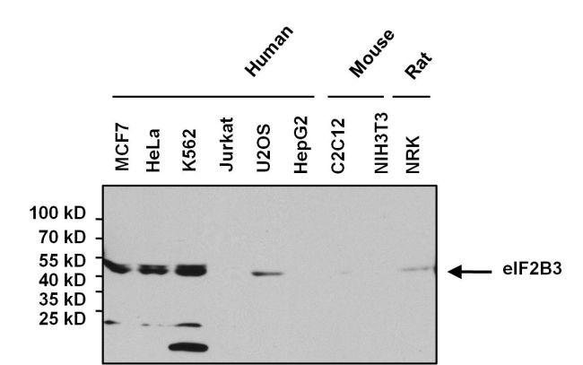 eIF2b gamma Antibody (MA1-078) in Western Blot