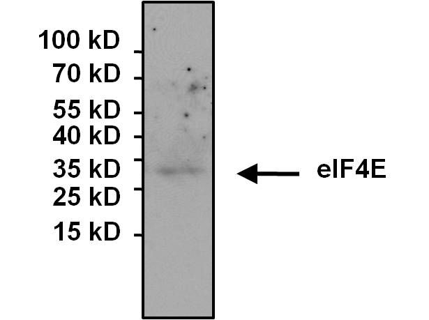 eIF4E Antibody (MA1-089) in Immunoprecipitation