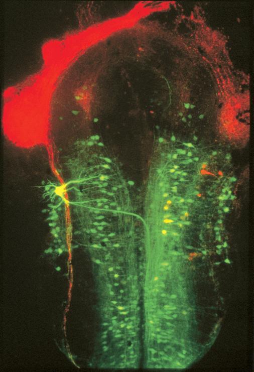 Brain of a Xenopus laevis embryo Xenopus Laevis Embryo