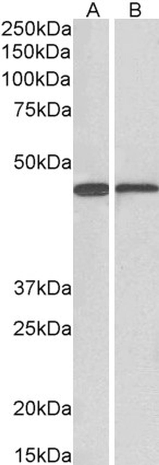 ACAT1 Antibody (PA5-19227) in Western Blot