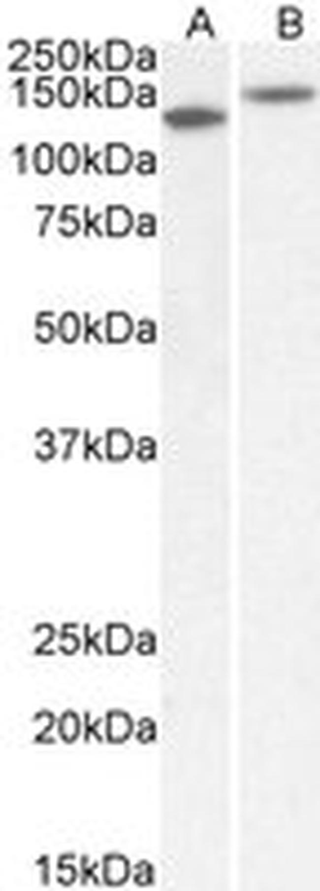 Contactin 1 Antibody (PA5-37853) in Western Blot