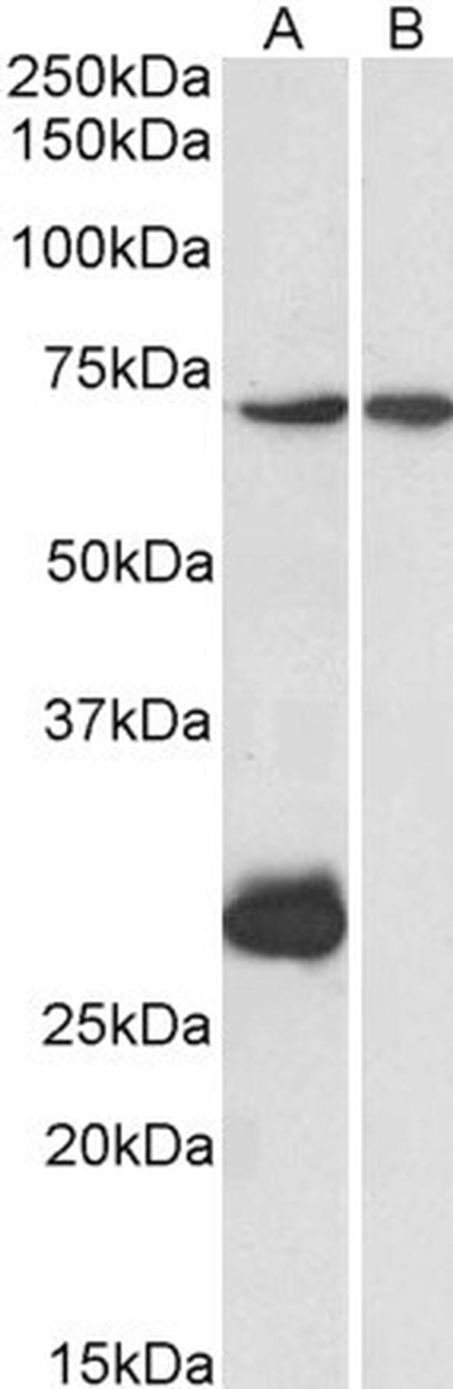 CPT2 Antibody (PA5-19222) in Western Blot