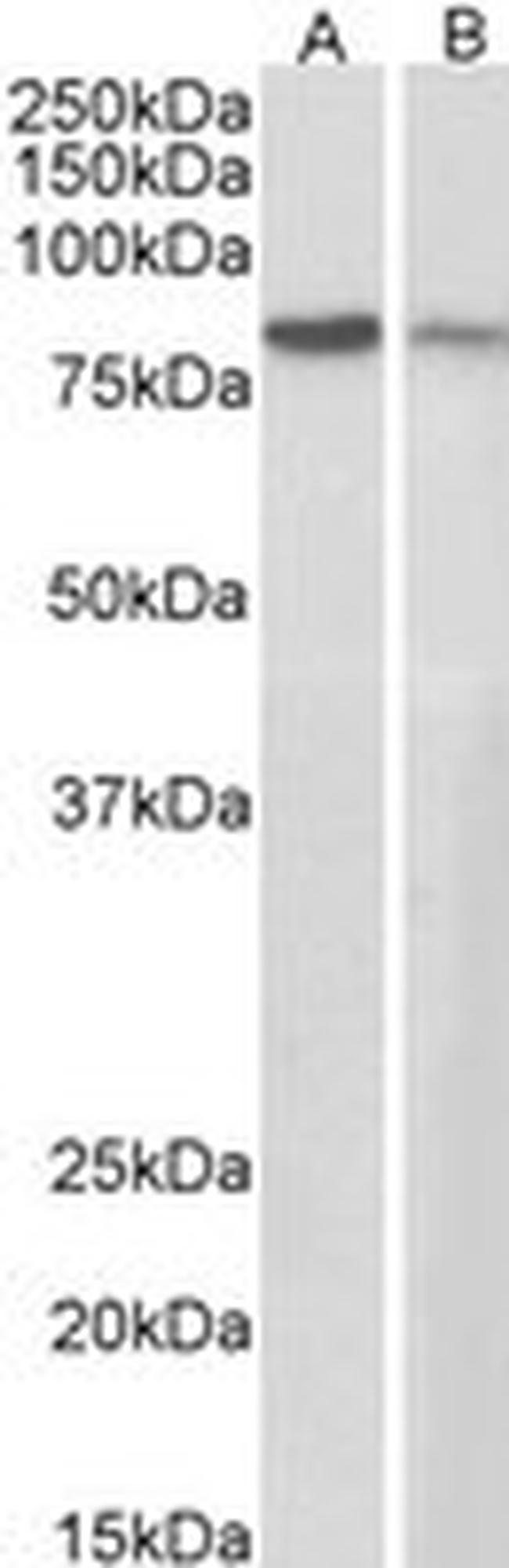 gamma Catenin Antibody (PA5-18064)