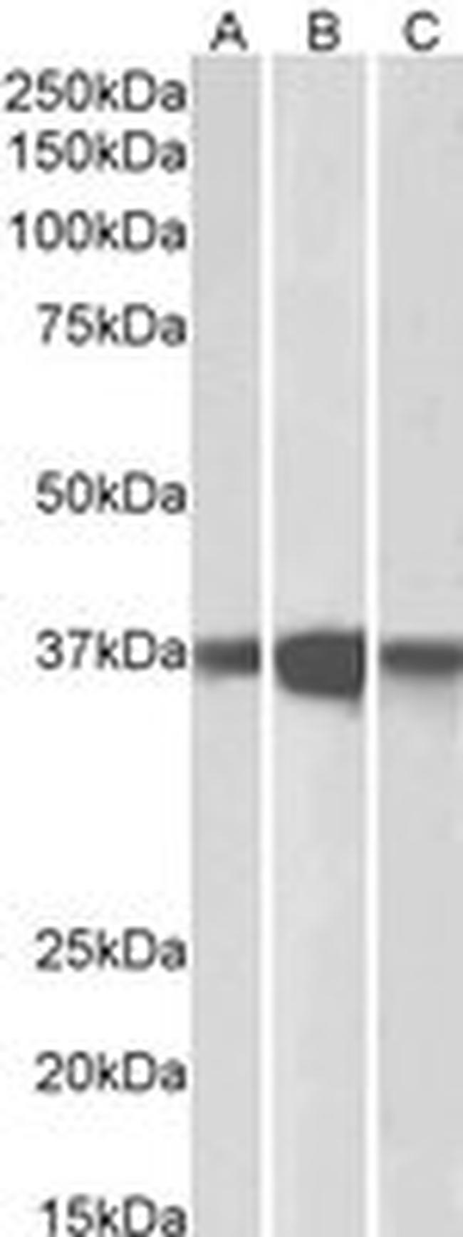 PP2A alpha/beta Antibody (PA5-17980) in Western Blot