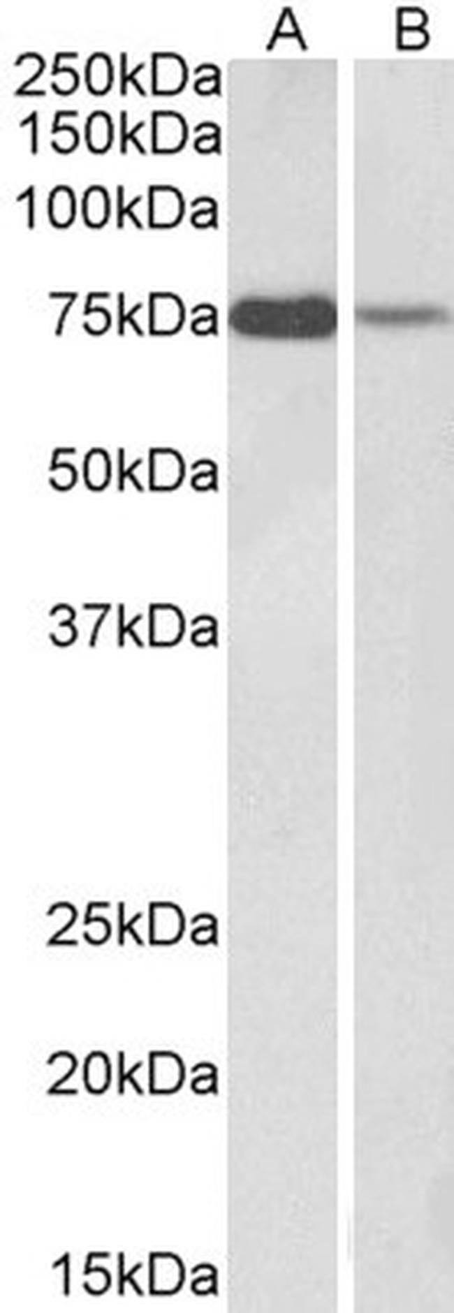 RACGAP1 Antibody (PA5-18005) in Western Blot