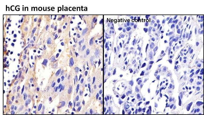 hCG Antibody (MA5-14680) in Immunohistochemistry (Paraffin)