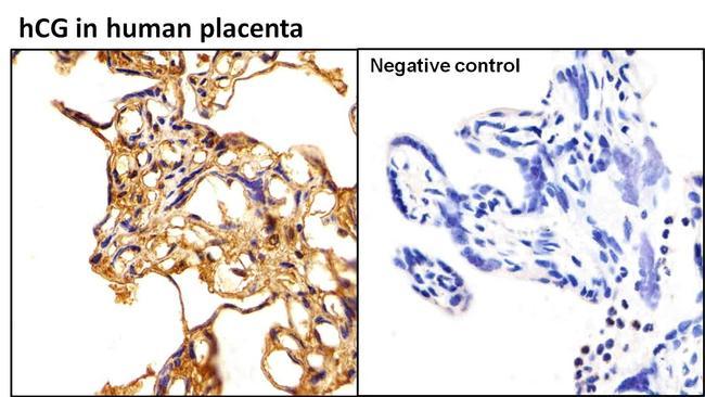 hCG Antibody (MA5-14699) in Immunohistochemistry (Paraffin)