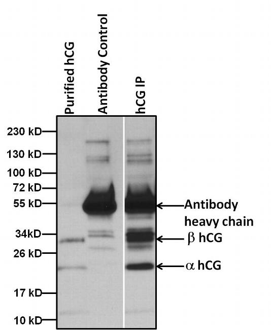 hCG Antibody (MA5-14701) in Immunoprecipitation
