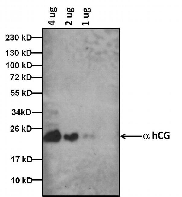 hCG Antibody (MA5-14702)