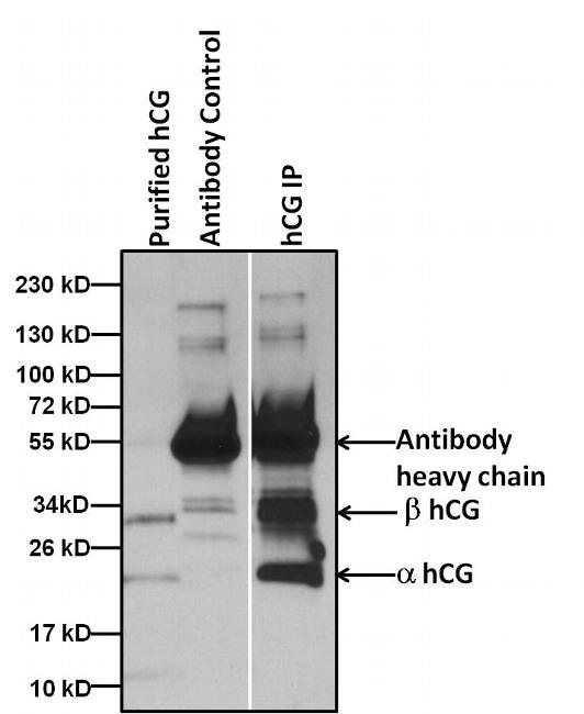 hCG Antibody (MIH9801) in Immunoprecipitation