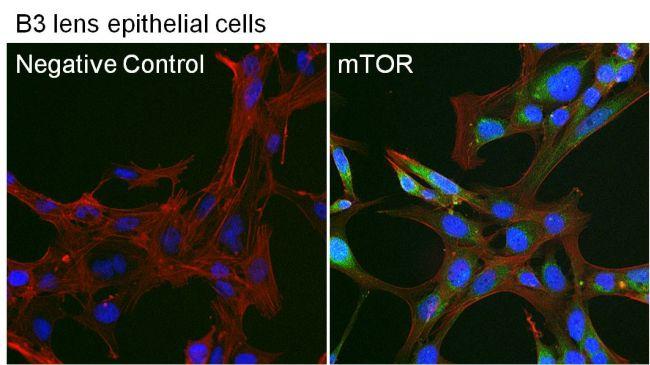 mTOR Antibody (PA1-188) in Immunofluorescence