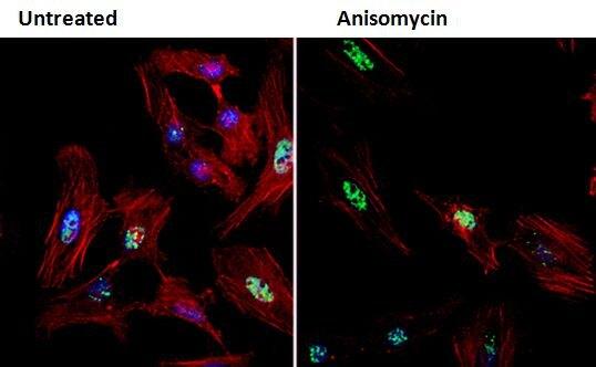 Phospho-CHK2 (Thr68) Antibody (PA5-17818) in Immunofluorescence