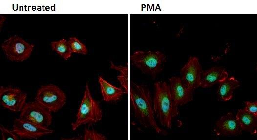 Phospho-ERK1/ERK2 (Thr202, Tyr204) Antibody (PA1-4607) in Immunofluorescence