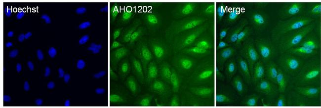 p38 MAPK alpha Antibody (AHO1202) in Immunofluorescence