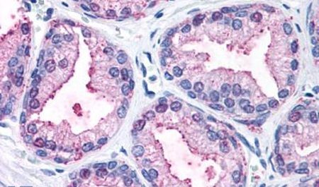 ERK1 Antibody (PA5-32912) in Immunohistochemistry (Paraffin)
